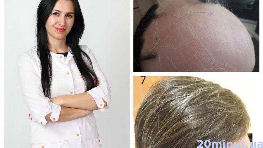 Унікальний випадок: жителька Тернопільщини 25 років ходила в перуці. Тепер розчісує своє волосся
