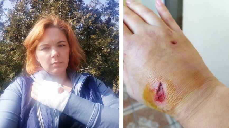 У Тернополі пес накинувся на заслужену артистку Оксану Малінович. Тепер її чекають лікарня і уколи