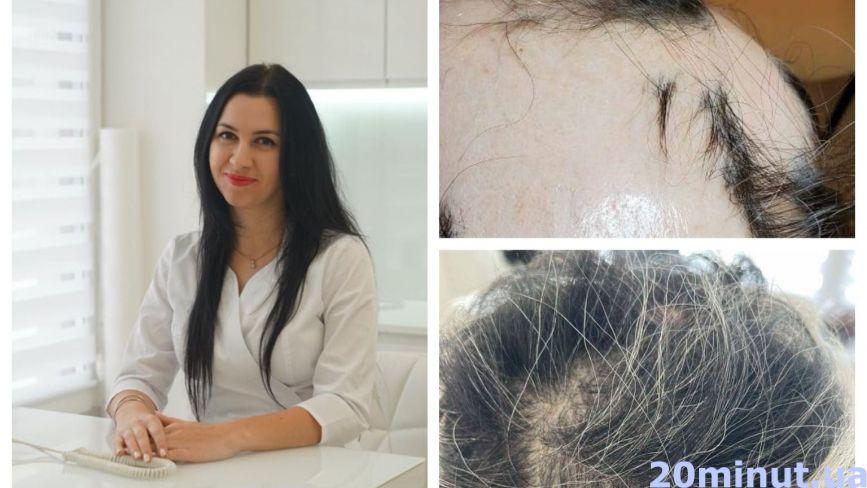 Жіноче облисіння: у тернополянки, яка була лисою і 25 років носила перуку, відросло своє волосся. Як?