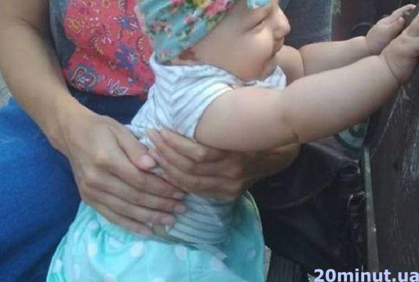 Я все одно знайду лікаря, який врятує Софійці ніжку: тернополянка бореться за здоров'я шестимісячної донечки