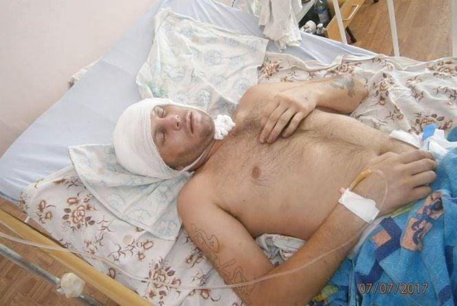 У Ланівцях жорстоко побили АТОвця. Чоловікові потрібна допомога