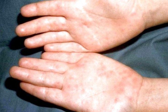 У Чорткові зареєстрували спалах ентеровірусної інфекції