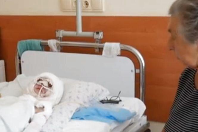 Максимкові Лихолату у Львові зробили операцію з пересадки шкіри