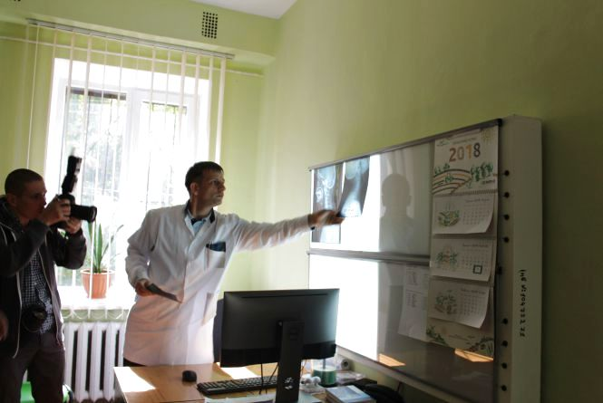У ІІ міській лікарні придбали рентген-апарати за 9 мільйонів гривень із меншим рівнем опромінення