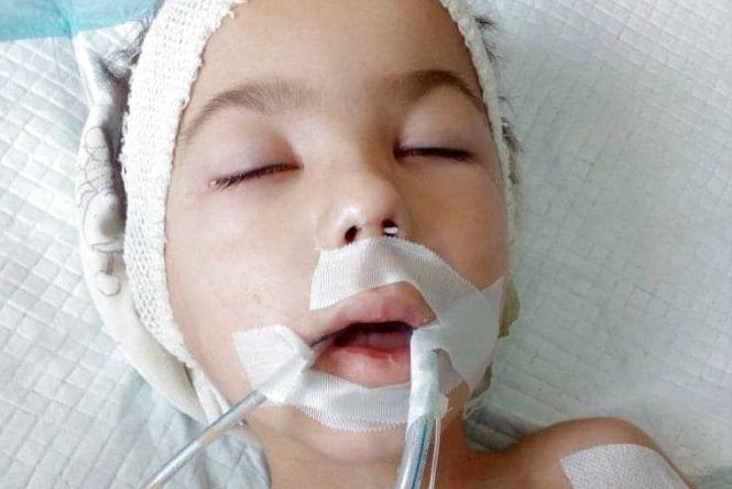 Чотирирічного Славчика рятують у реанімації від ускладнень після кору. Потрібна допомога на лікування
