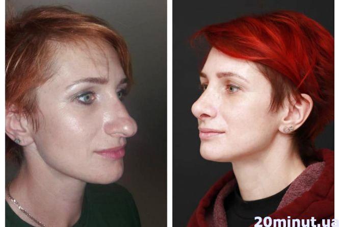 Прокинулася з новим носом: як лікар з Тернополя здійснив мрію жінки у формі