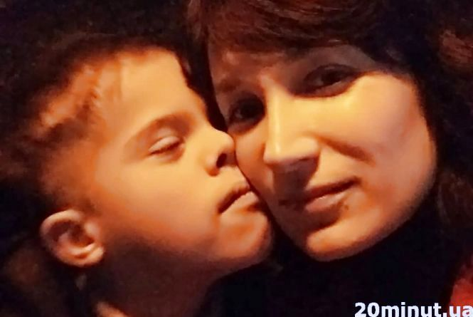 """""""Знадобився рік, щоб прийняти діагноз лікарів"""": тернополянка розповіла, як бути мамою сонячної дитини"""