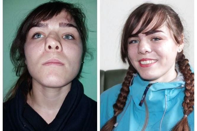 Не могла дихати носом, не відчувала запахів. Як пластична операція змінила життя 22-річній Лілії