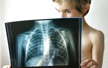 Хто в групі ризику та як вберегтись: 5 фактів про пневмонію від головного пульмонолога Тернопільщини
